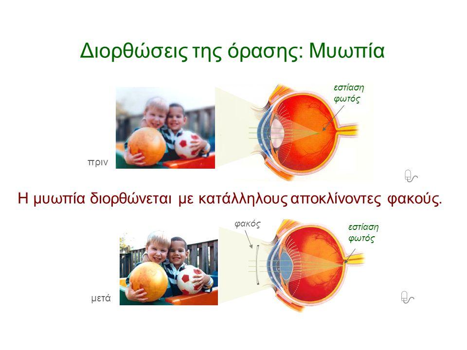 Διορθώσεις της όρασης: Μυωπία