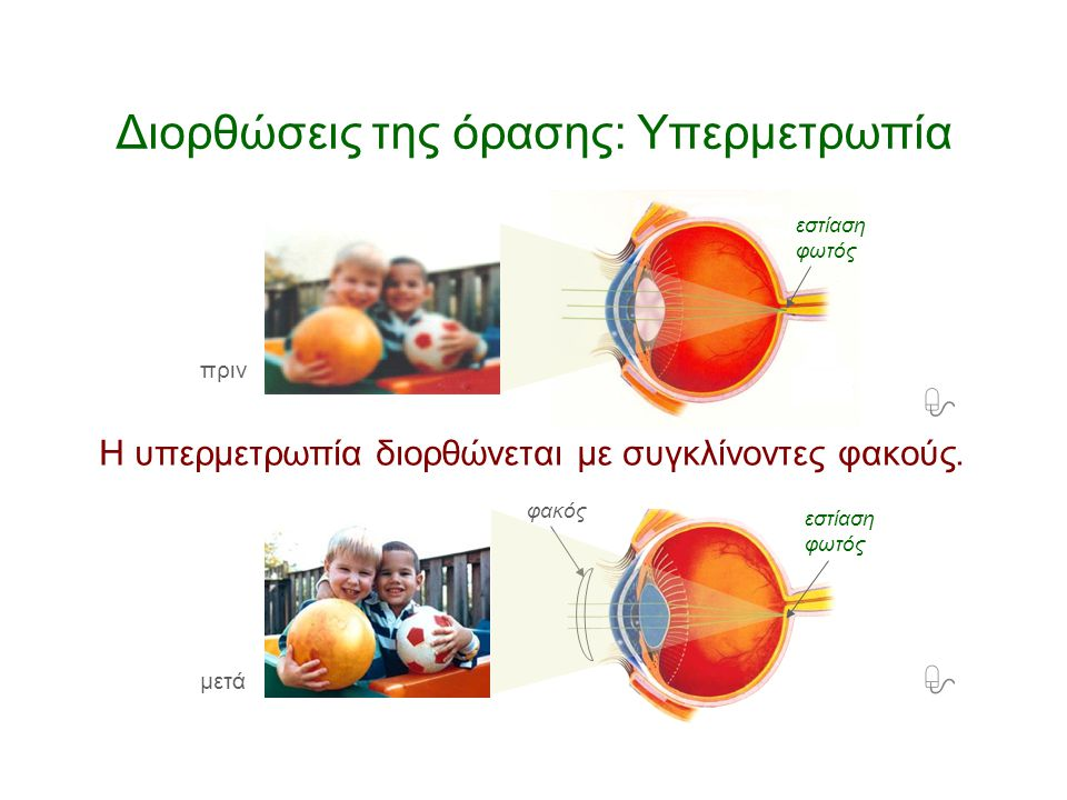 Διορθώσεις της όρασης: Υπερμετρωπία