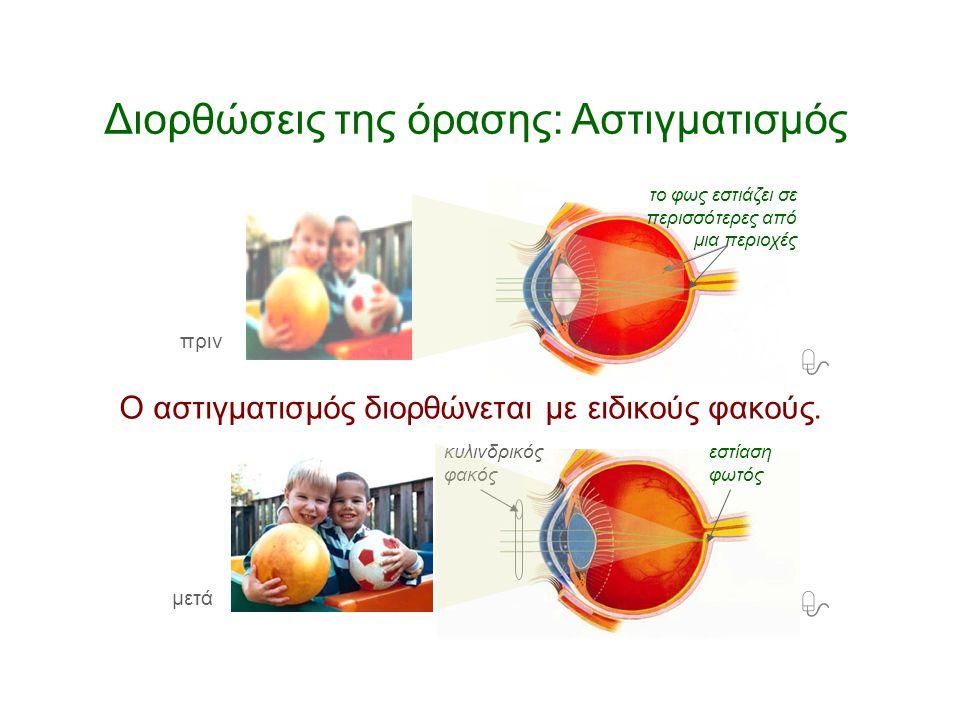 Διορθώσεις της όρασης: Αστιγματισμός