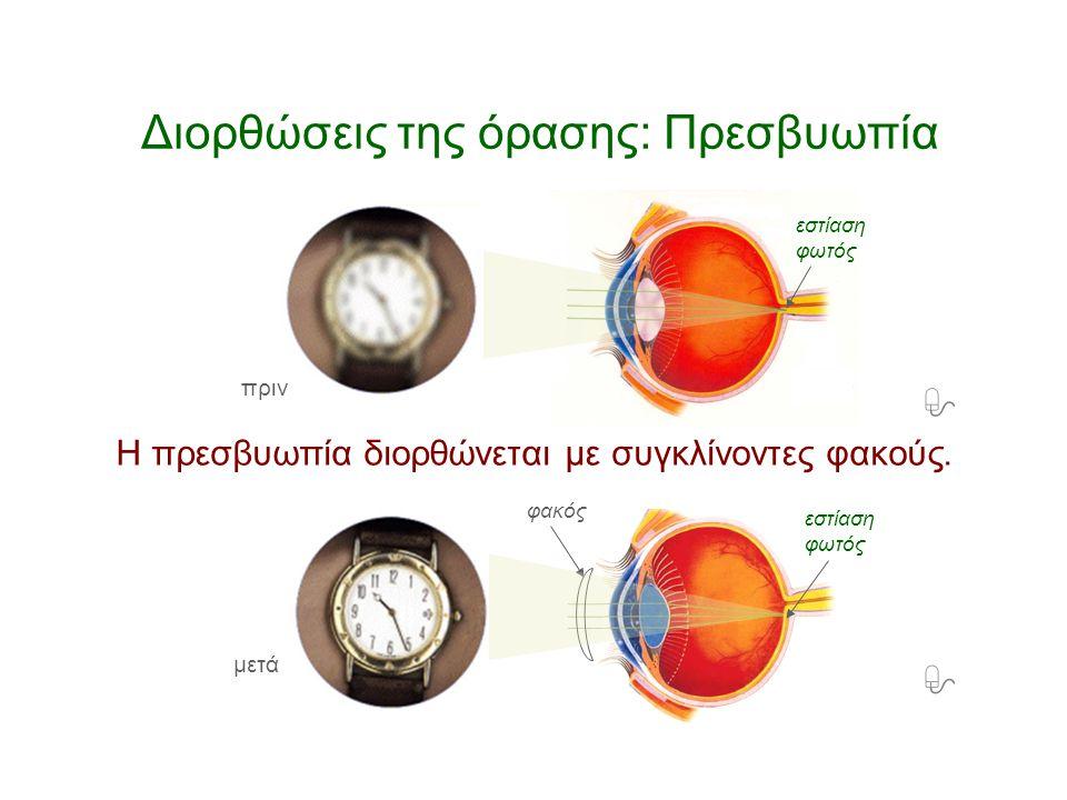 Διορθώσεις της όρασης: Πρεσβυωπία