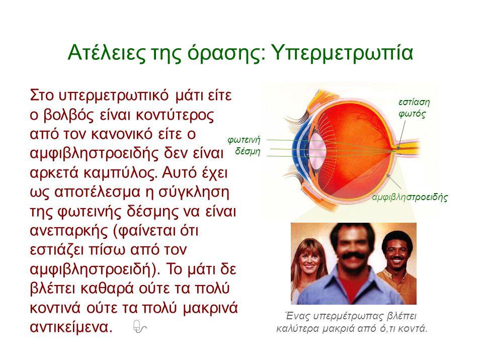 Ατέλειες της όρασης: Υπερμετρωπία