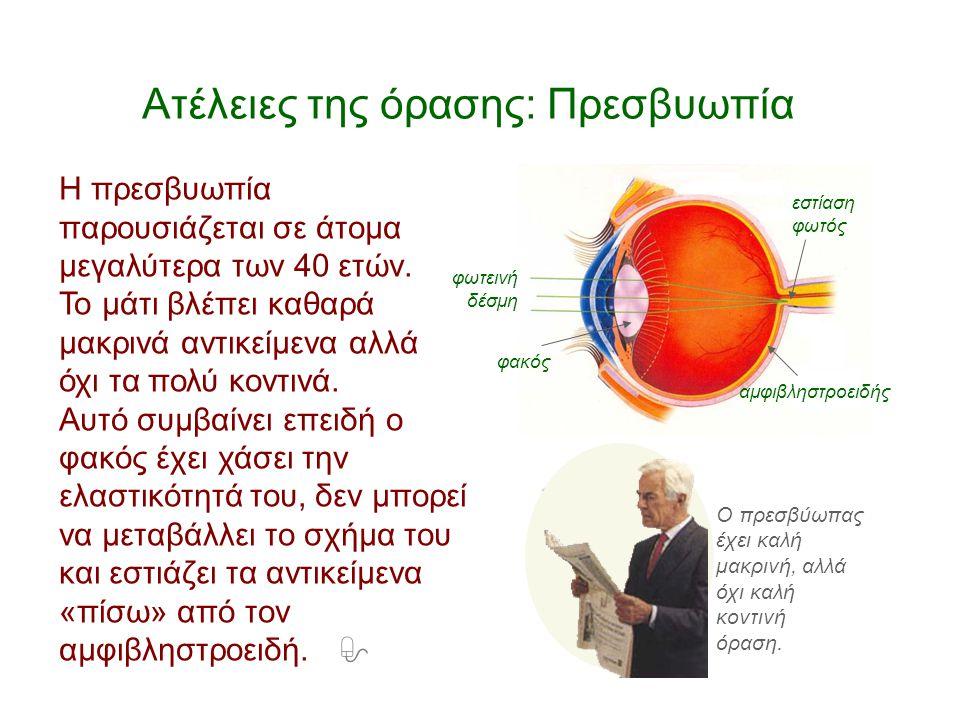 Ατέλειες της όρασης: Πρεσβυωπία