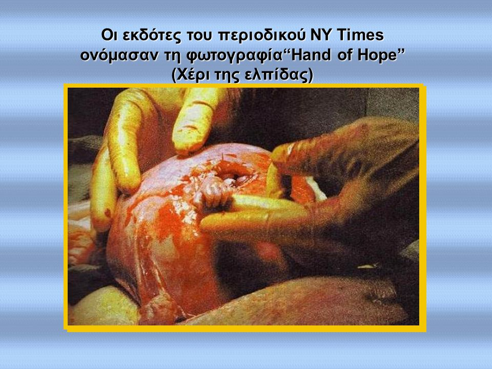 Οι εκδότες του περιοδικού NY Times ονόμασαν τη φωτογραφία Hand of Hope (Χέρι της ελπίδας)
