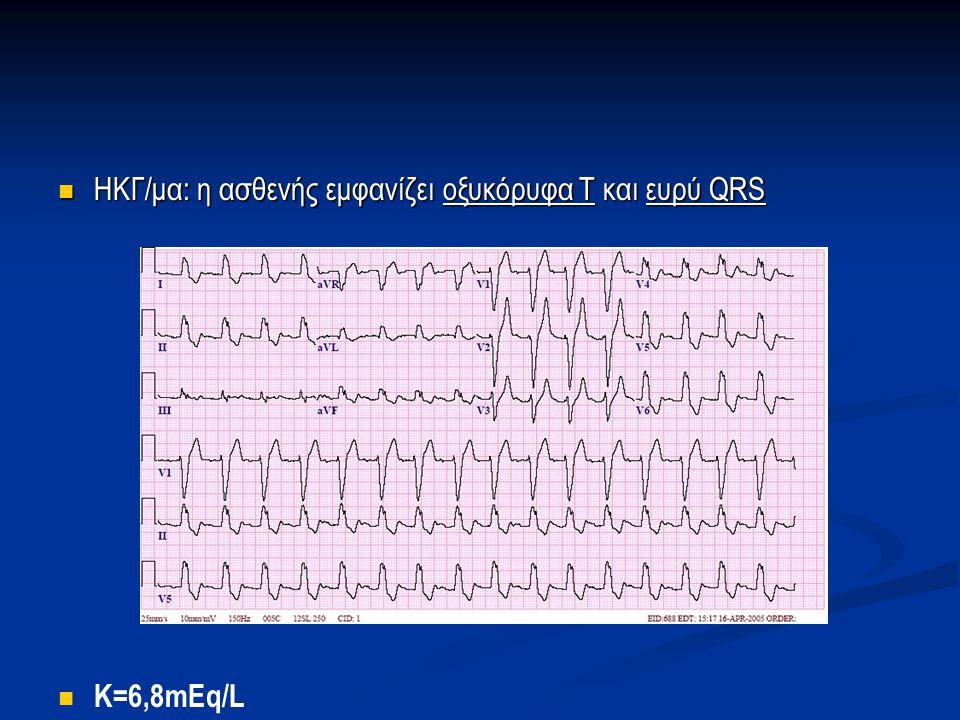 ΗΚΓ/μα: η ασθενής εμφανίζει οξυκόρυφα Τ και ευρύ QRS