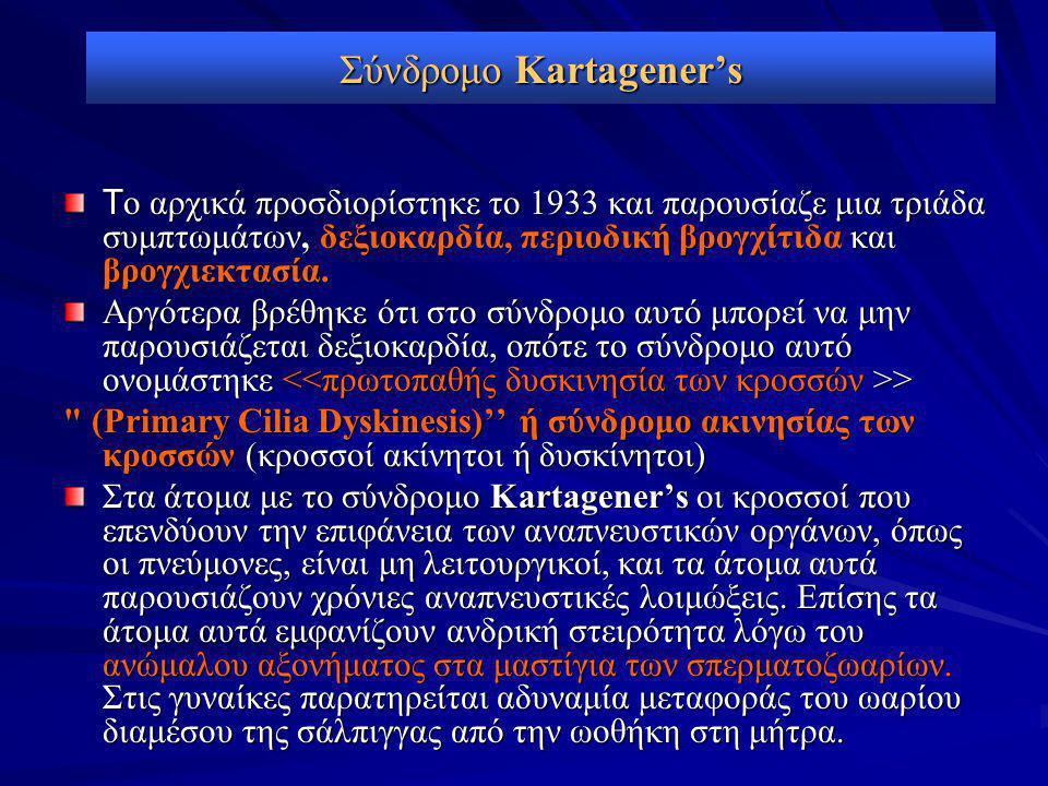 Σύνδρομο Kartagener's