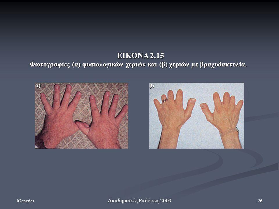 ΕΙΚΟΝΑ 2.15 Φωτογραφίες (α) φυσιολογικών χεριών και (β) χεριών με βραχυδακτυλία. α) β) iGenetics.