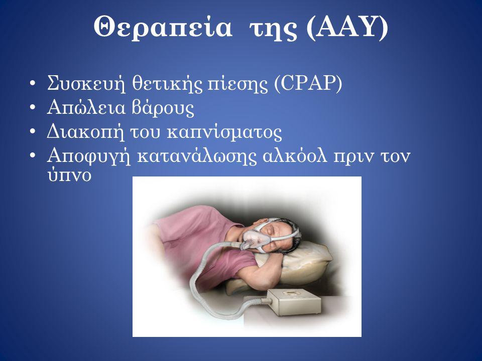 Θεραπεία της (ΑΑΥ) Συσκευή θετικής πίεσης (CPAP) Απώλεια βάρους