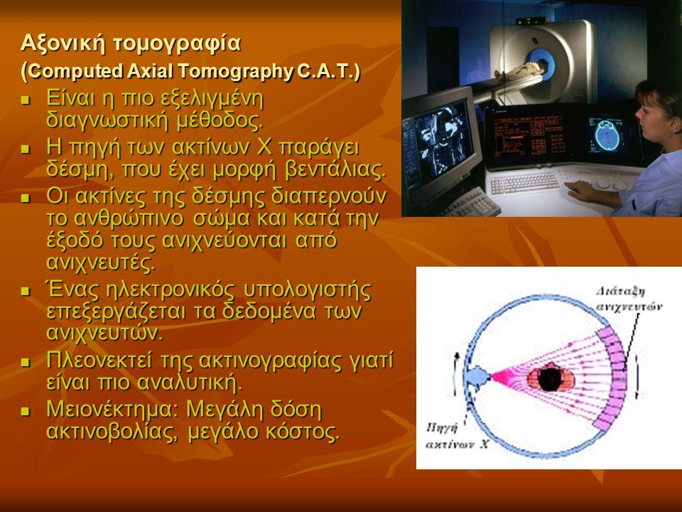 Αξονική τομογραφία (Computed Axial Tomography C.A.T.) Είναι η πιο εξελιγμένη διαγνωστική μέθοδος.