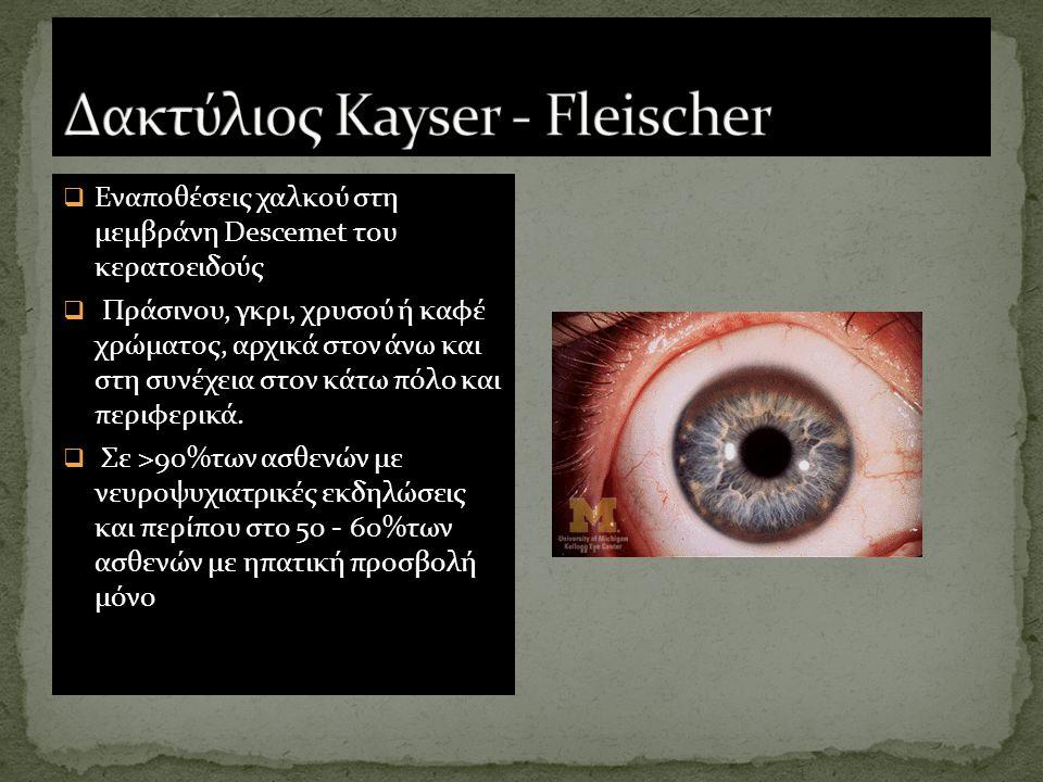Δακτύλιος Kayser - Fleischer