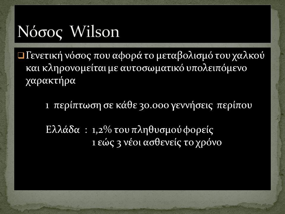 Νόσος Wilson