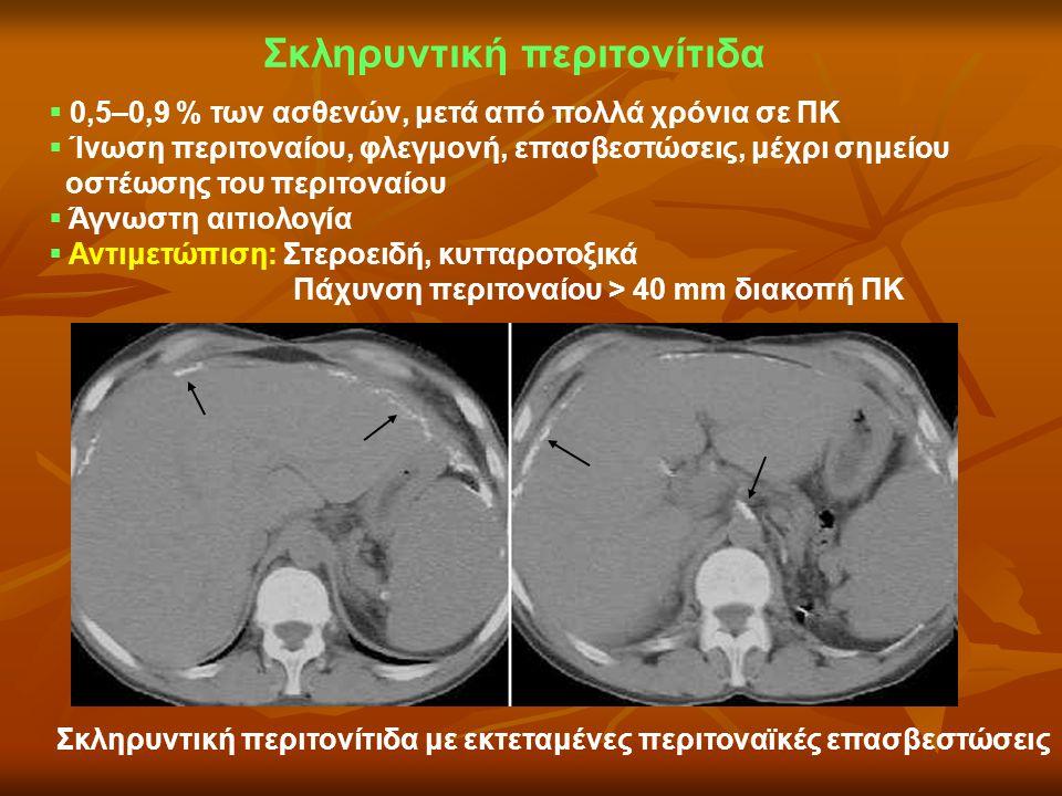 Σκληρυντική περιτονίτιδα
