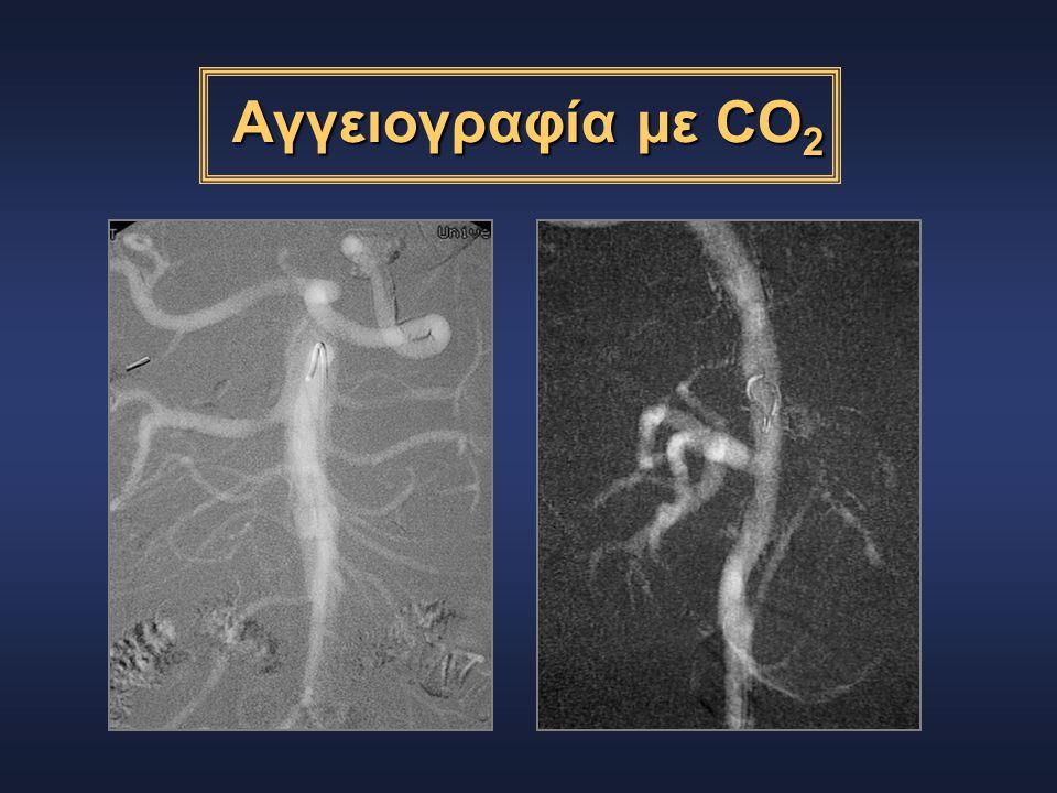 Αγγειογραφία με CO2