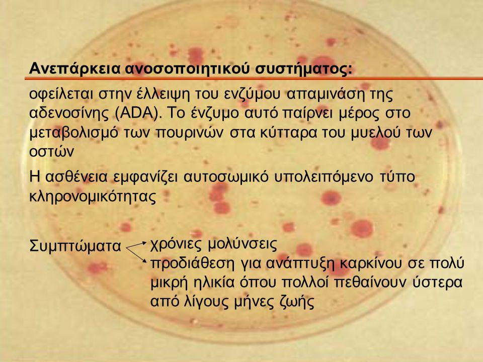 Ανεπάρκεια ανοσοποιητικού συστήματος: