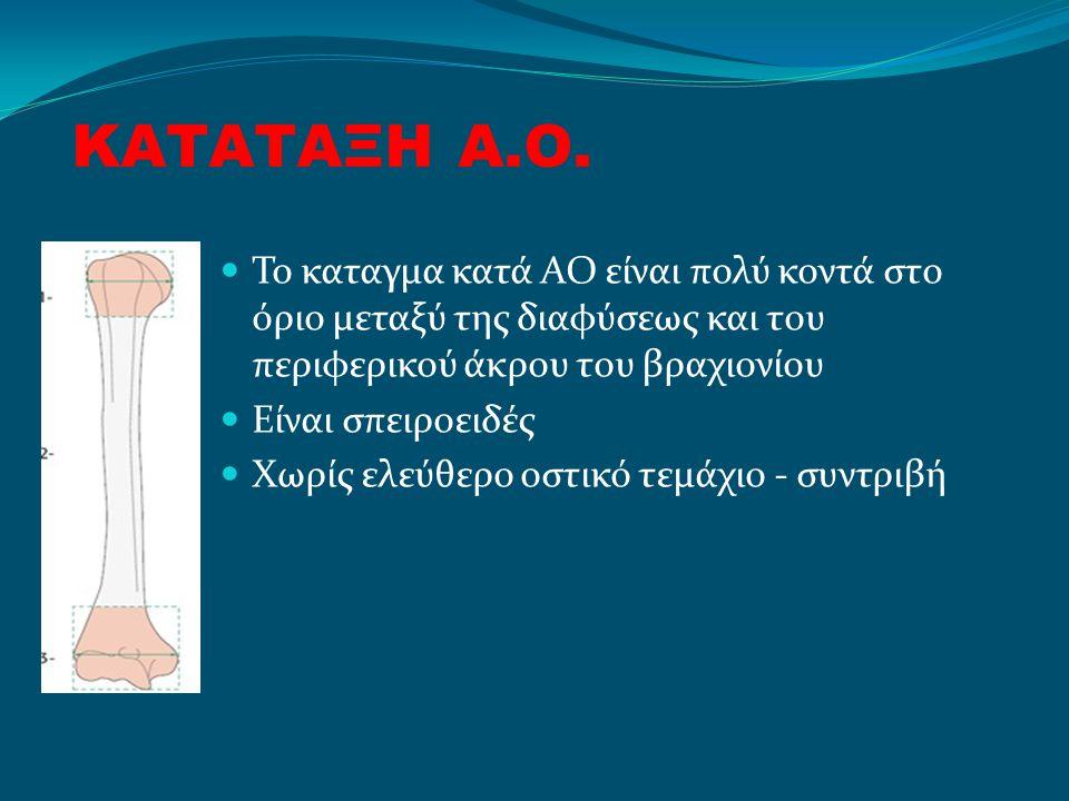 ΚΑΤΑΤΑΞΗ Α.Ο. Το καταγμα κατά ΑΟ είναι πολύ κοντά στο όριο μεταξύ της διαφύσεως και του περιφερικού άκρου του βραχιονίου.