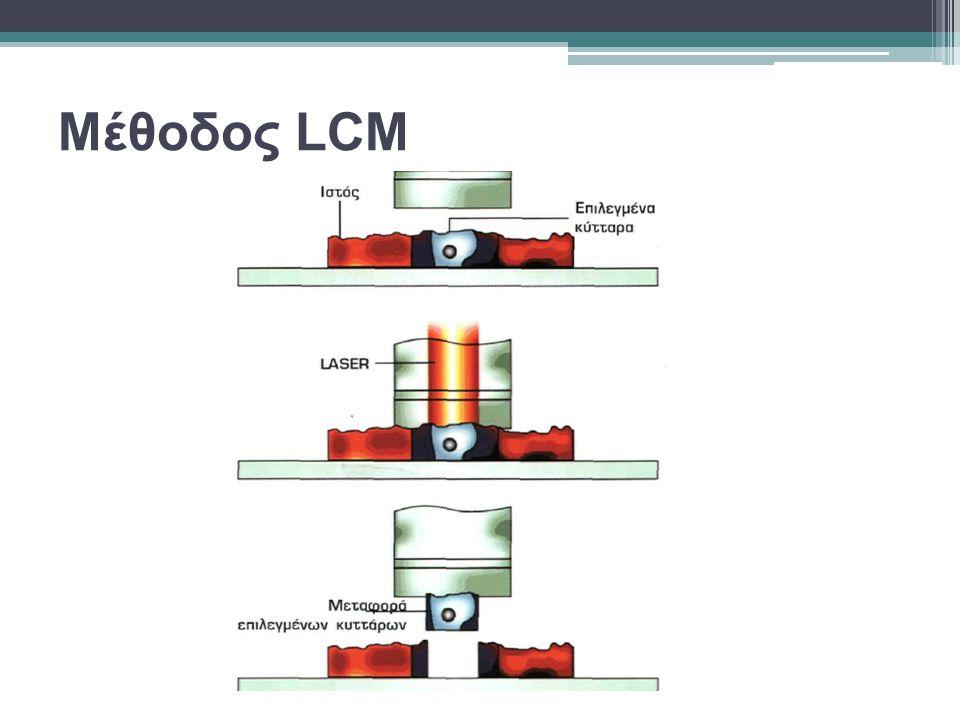 Μέθοδος LCM