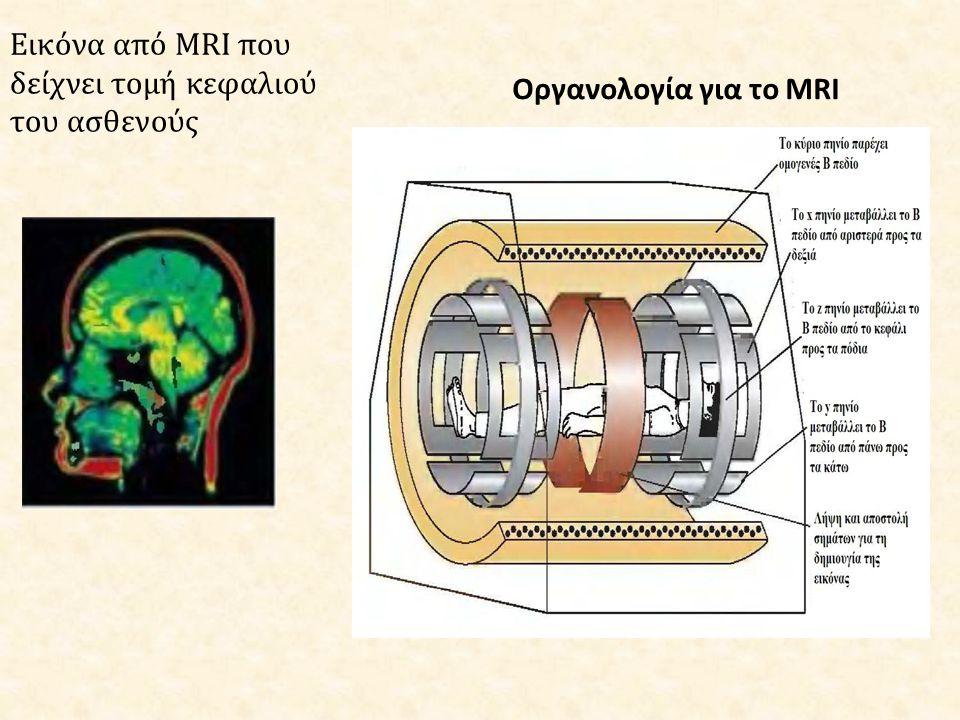 Εικόνα από MRI που δείχνει τομή κεφαλιού του ασθενούς