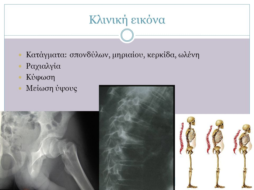 Κλινική εικόνα Κατάγματα: σπονδύλων, μηριαίου, κερκίδα, ωλένη
