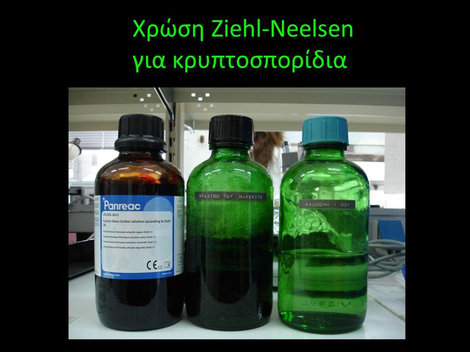 Χρώση Ziehl-Neelsen για κρυπτοσπορίδια