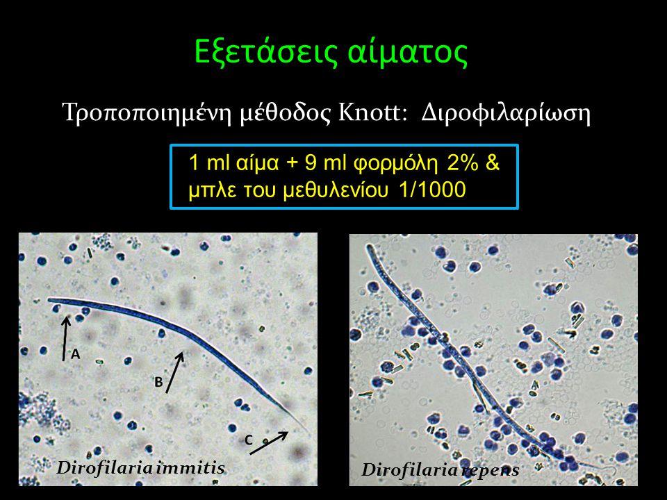 Εξετάσεις αίματος Τροποποιημένη μέθοδος Knott: Διροφιλαρίωση