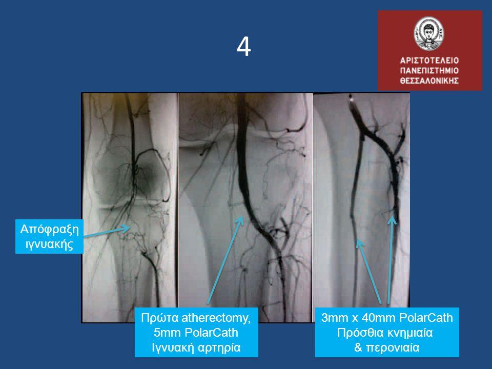4 Απόφραξη ιγνυακής Πρώτα atherectomy, 5mm PolarCath Ιγνυακή αρτηρία