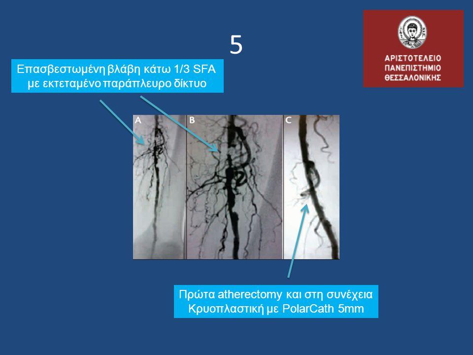 5 Επασβεστωμένη βλάβη κάτω 1/3 SFA με εκτεταμένο παράπλευρο δίκτυο