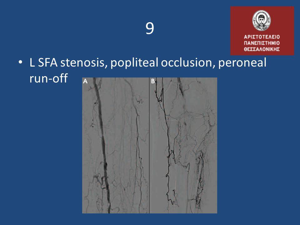9 L SFA stenosis, popliteal occlusion, peroneal run-off