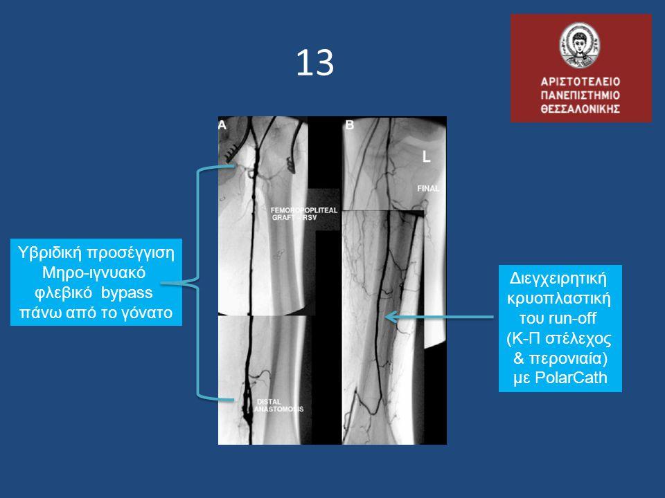 13 Υβριδική προσέγγιση Μηρο-ιγνυακό φλεβικό bypass Διεγχειρητική