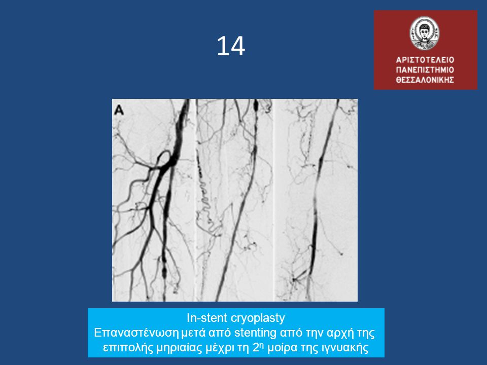 14 In-stent cryoplasty Επαναστένωση μετά από stenting από την αρχή της
