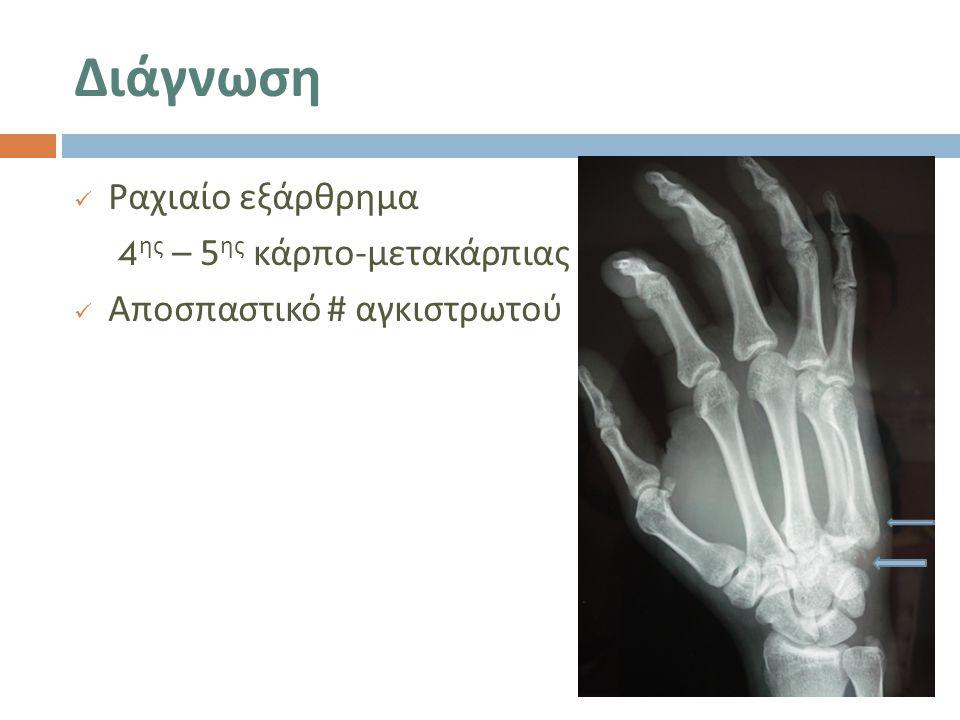 Διάγνωση Ραχιαίο εξάρθρημα 4ης – 5ης κάρπο-μετακάρπιας