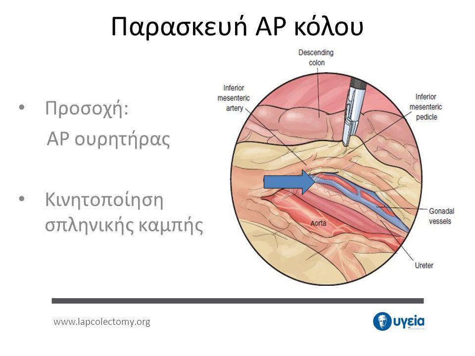 Προσοχή: ΑΡ ουρητήρας Κινητοποίηση σπληνικής καμπής