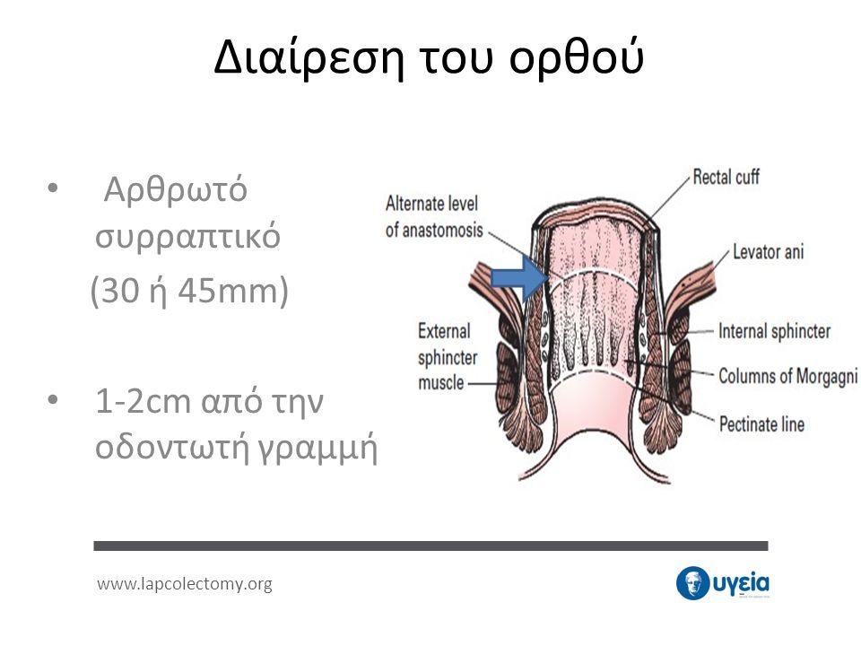 Αρθρωτό συρραπτικό (30 ή 45mm) 1-2cm από την οδοντωτή γραμμή