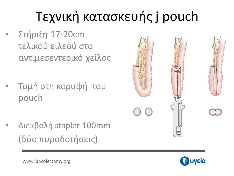 Τεχνική κατασκευής j pouch