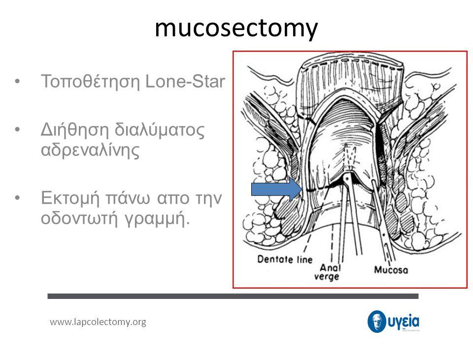 mucosectomy Τοποθέτηση Lone-Star Διήθηση διαλύματος αδρεναλίνης