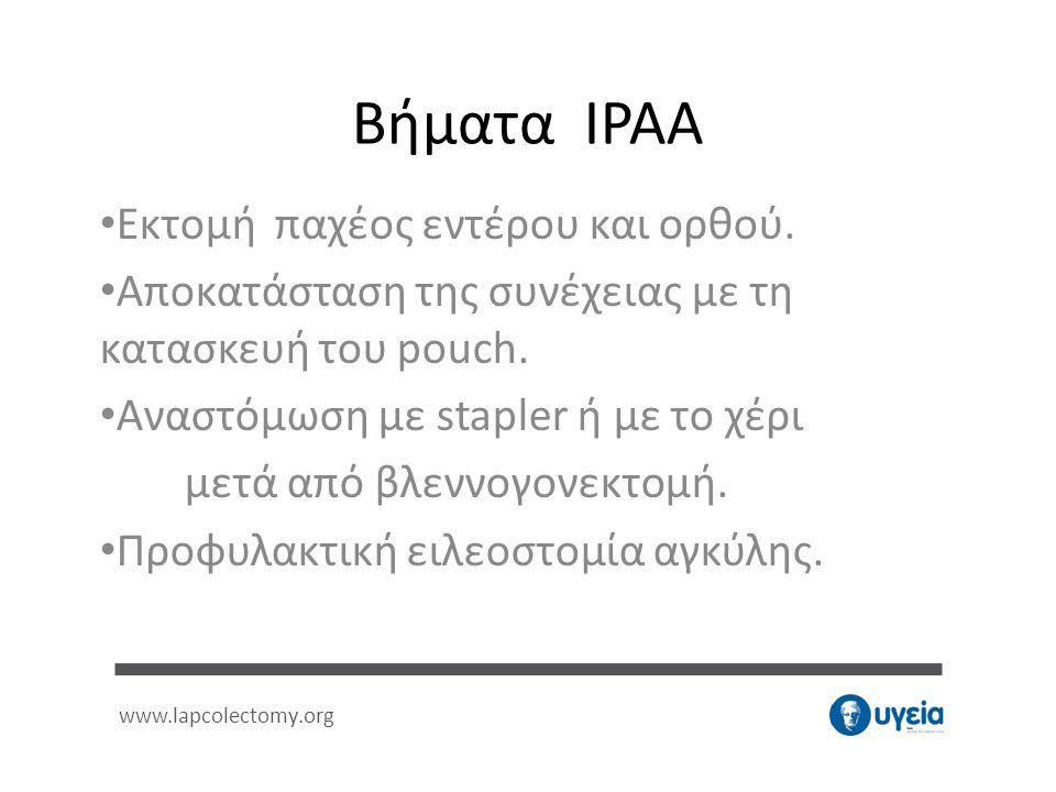 Βήματα IPAA Εκτομή παχέος εντέρου και ορθού.