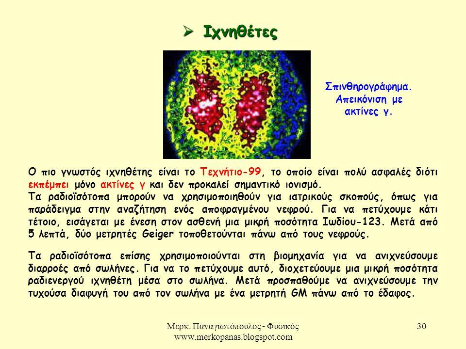 Σπινθηρογράφημα. Απεικόνιση με ακτίνες γ.