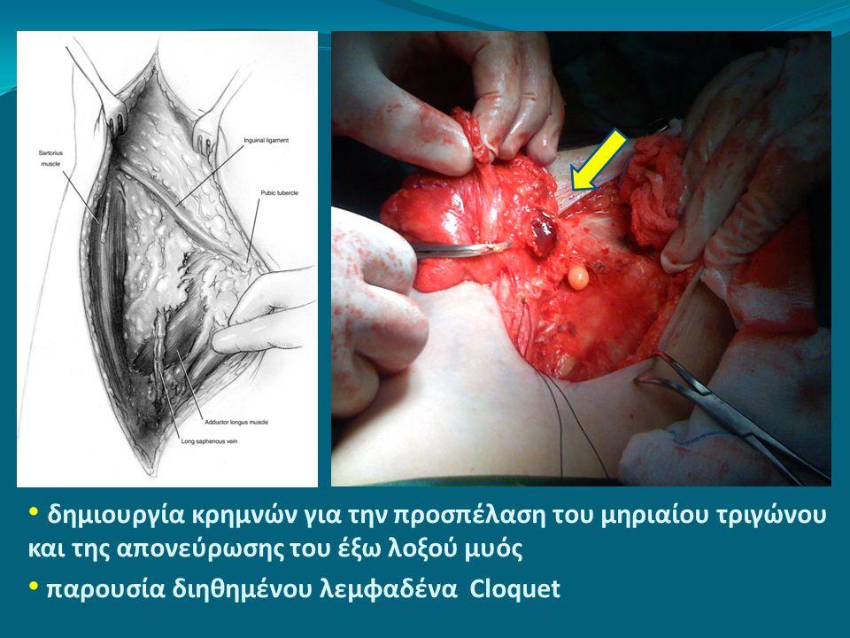 δημιουργία κρημνών για την προσπέλαση του μηριαίου τριγώνου και της απονεύρωσης του έξω λοξού μυός