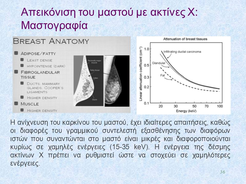 Απεικόνιση του μαστού με ακτίνες X: Μαστογραφία