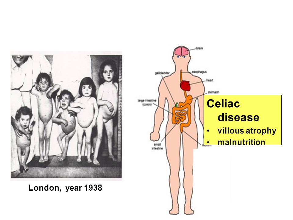 Celiac disease villous atrophy malnutrition London, year 1938