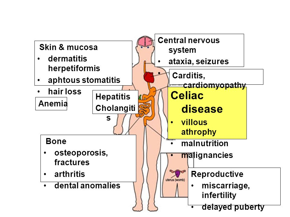 Celiac disease Central nervous system Skin & mucosa ataxia, seizures