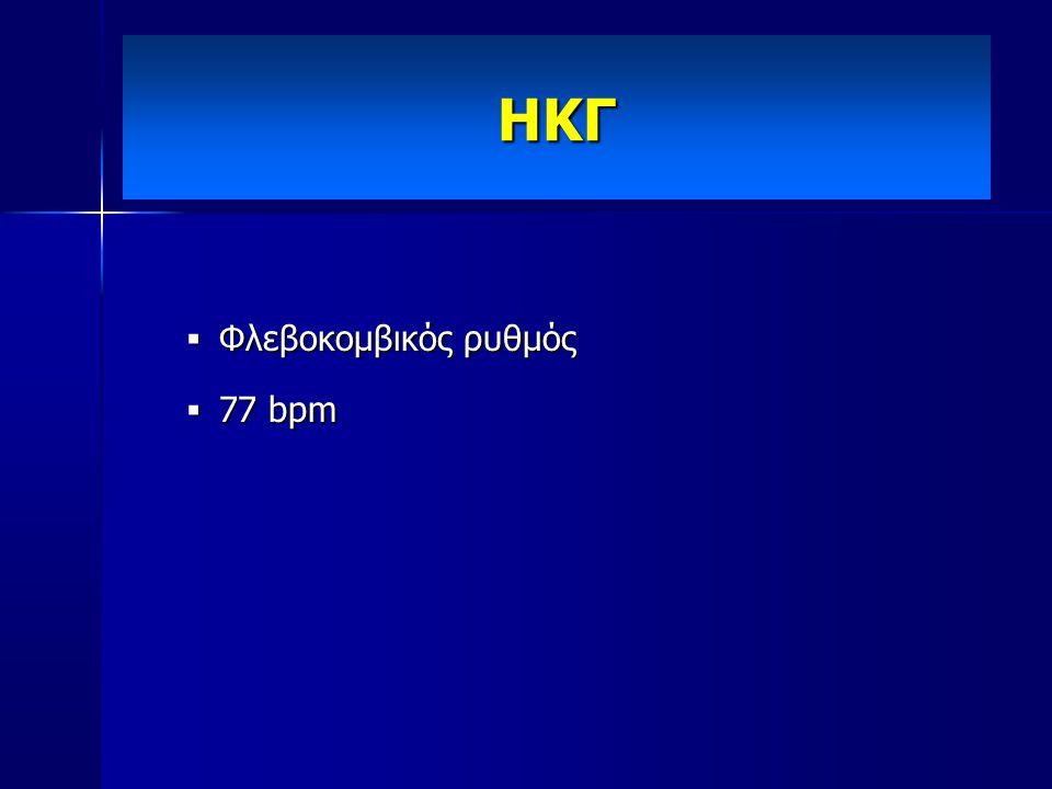 ΗΚΓ Φλεβοκομβικός ρυθμός 77 bpm
