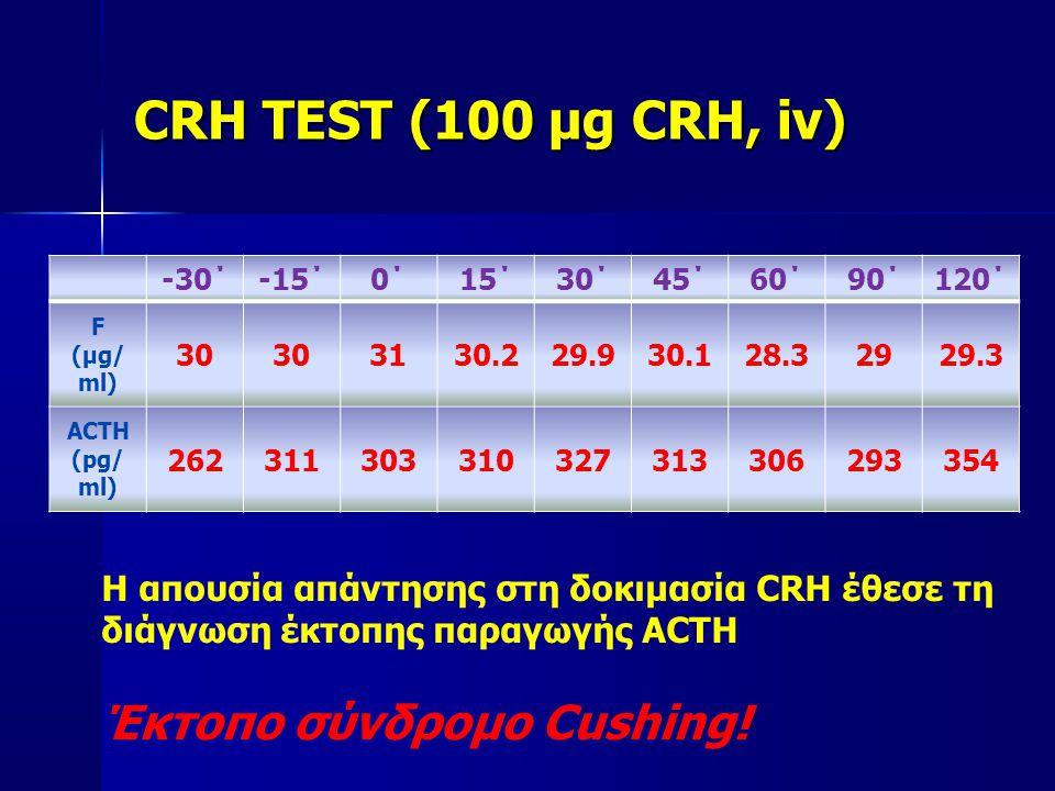CRH TEST (100 μg CRH, iv) Έκτοπο σύνδρομο Cushing!