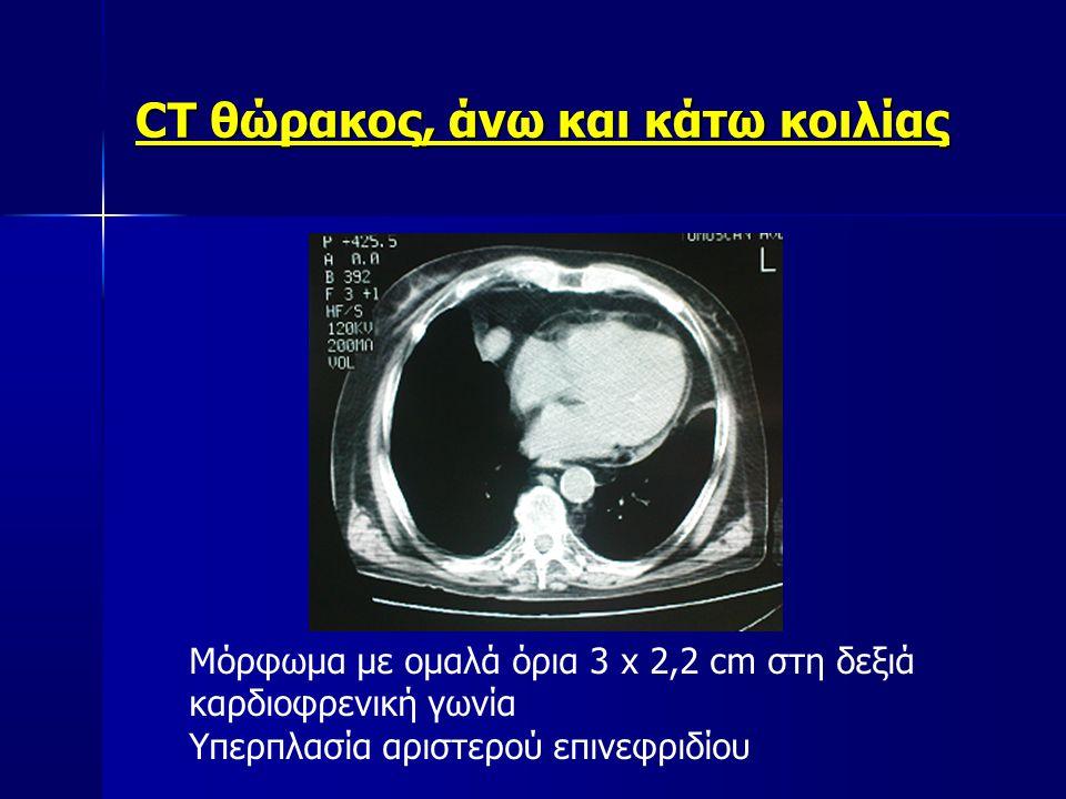 CT θώρακος, άνω και κάτω κοιλίας