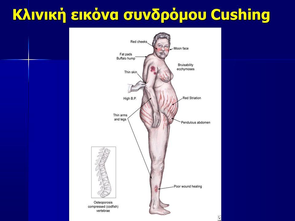Κλινική εικόνα συνδρόμου Cushing