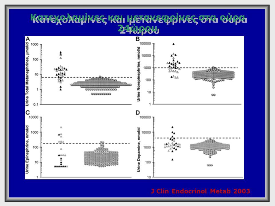Κατεχολαμίνες και μετανεφρίνες στα ούρα 24ώρου