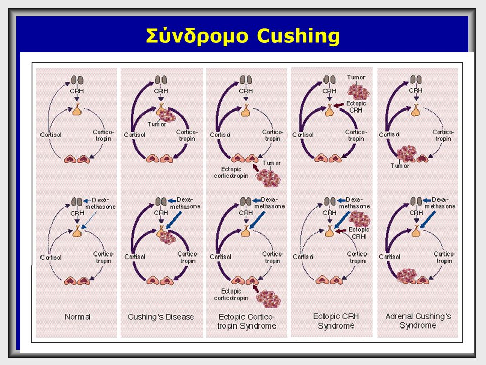 Σύνδρομο Cushing Α 1+2 : φυσιολογικό