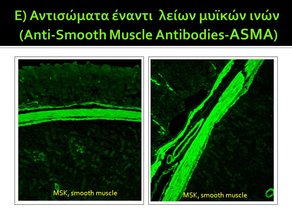 E) Αντισώματα έναντι λείων μυϊκών ινών (Anti-Smooth Muscle Antibodies-ASMA)