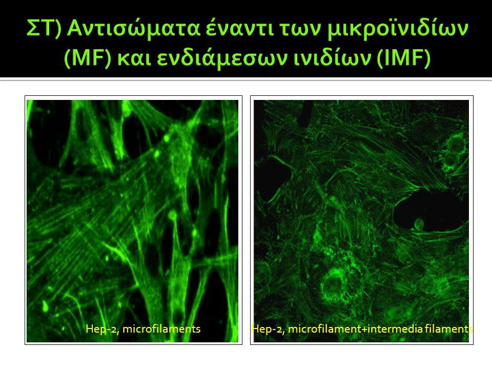 ΣΤ) Αντισώματα έναντι των μικροϊνιδίων (MF) και ενδιάμεσων ινιδίων (IMF)