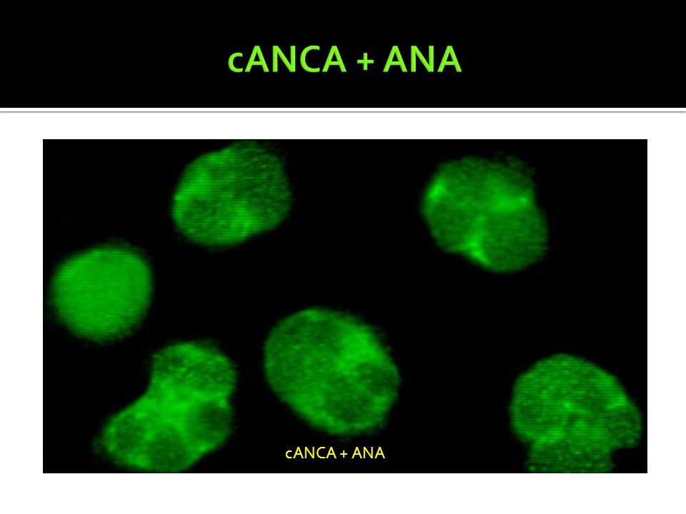 cANCA + ANA cANCA + ANA