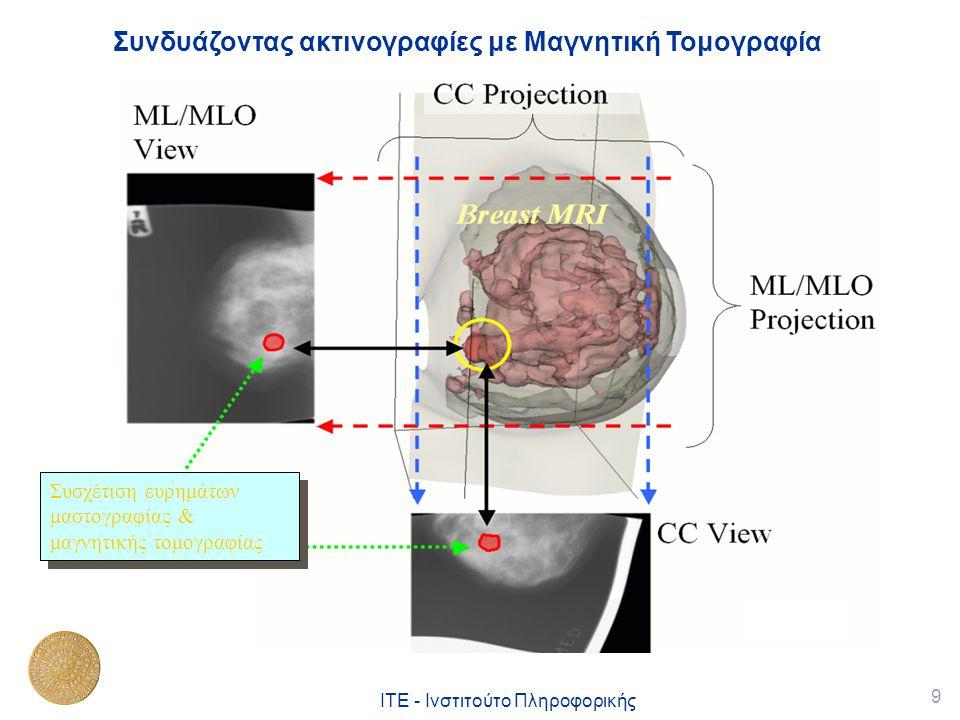 Συνδυάζοντας ακτινογραφίες με Μαγνητική Τομογραφία