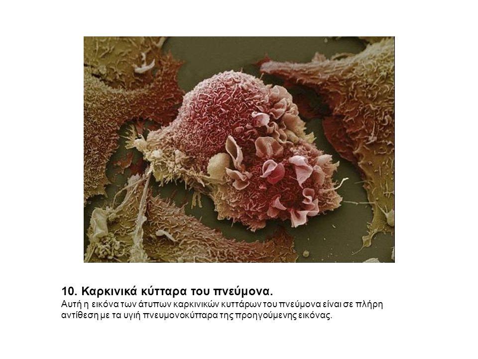 10. Καρκινικά κύτταρα του πνεύμονα.